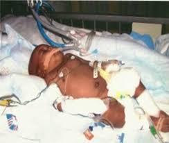 infant victim in lester street massacre.jpg